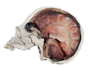 Human Brain in Skull